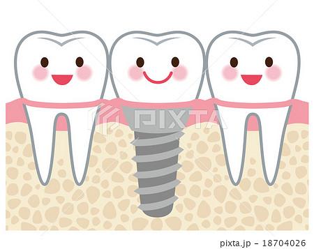 歯 インプラント 構造
